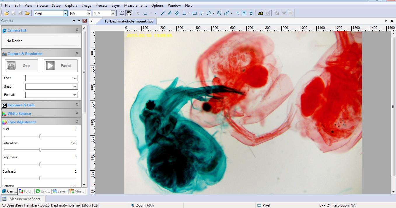 Camera cho kính hiển vi - Phần mềm chụp hình tiêu bản - khangkien.com.vn